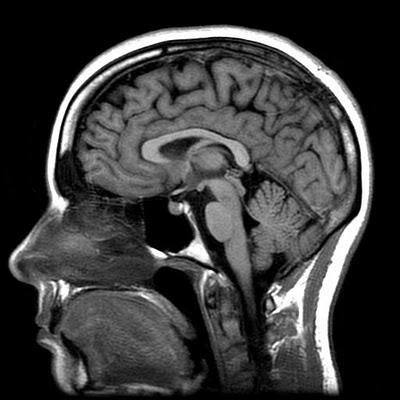 Инсульт повлиял на выбор языка уральского долгожителя